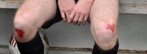 Les genoux du tacleur du jour, Anthony